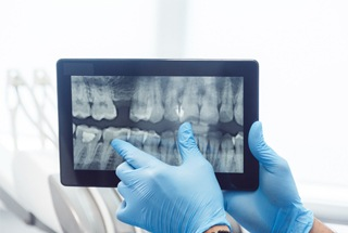 Dentist showing X-Rays