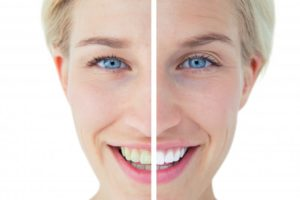 improved smile from cosmetic dentistry