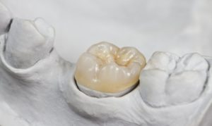 tooth colored dental crown white cast