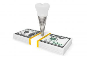 dental implant on money
