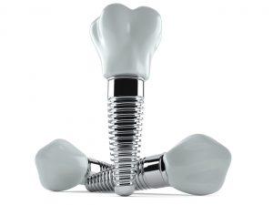 three dental implants
